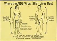 Where the AIDS Virus (HIV) Lives Best